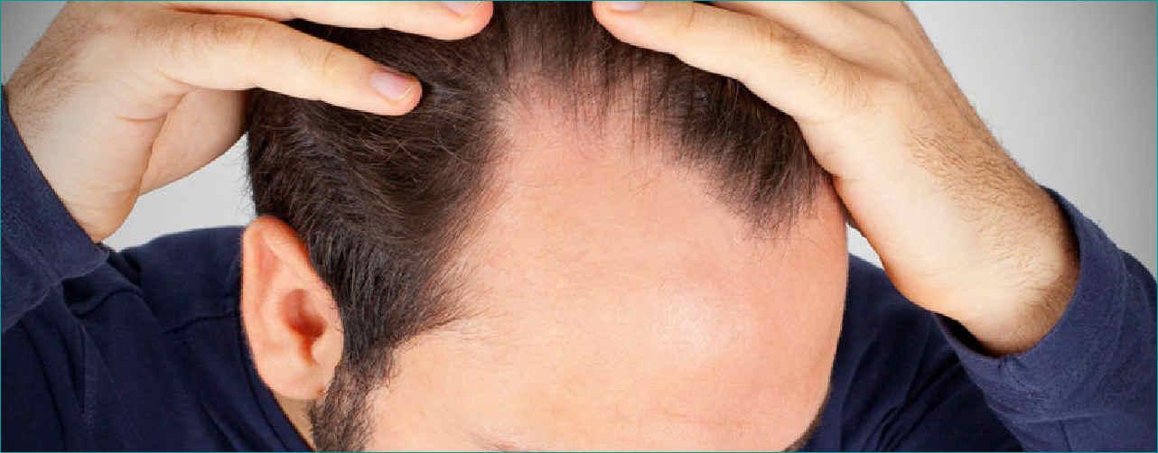 eccessiva perdita capelli